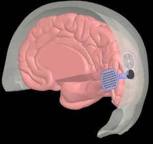 Second Sight Orion I Brain Implant